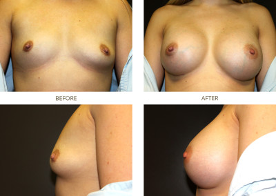 Breast-Augmentation11
