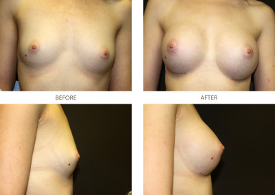 Breast-Augmentation12