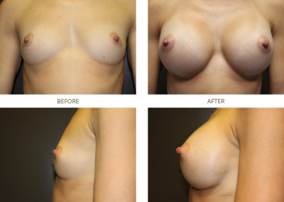 Breast-Augmentation13
