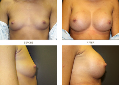 Breast-Augmentation14