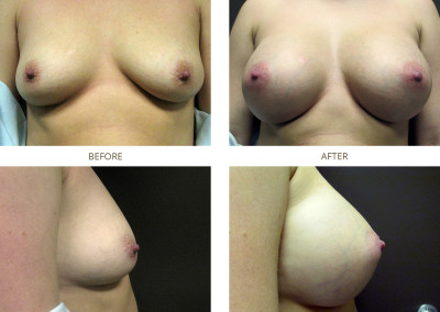 Breast-Augmentation15