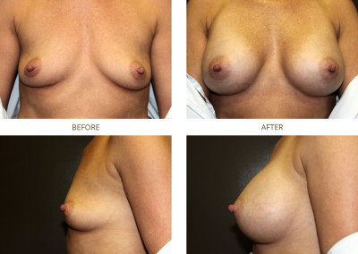 Breast-Augmentation16
