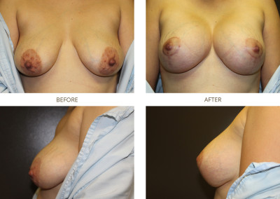 Breast-Augmentation17