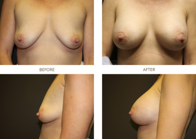 Breast-Augmentation18