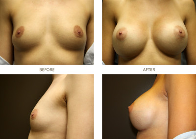 Breast-Augmentation19
