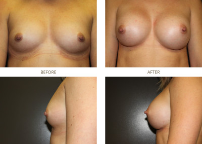 Breast-Augmentation20