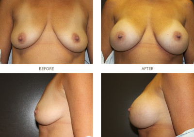 Breast-Augmentation21