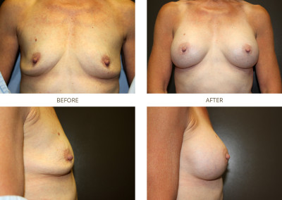 Breast-Augmentation3