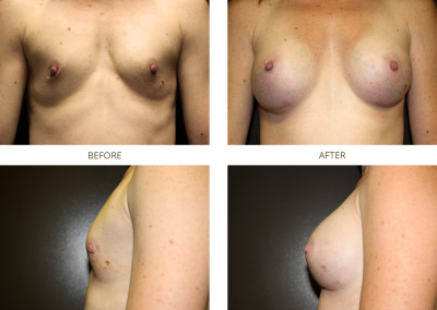 Breast-Augmentation5