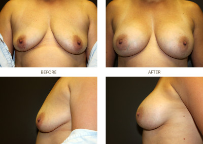 Breast-Augmentation6