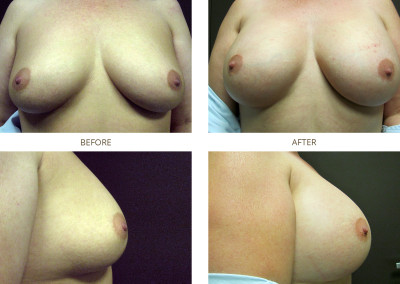 Breast-Augmentation7