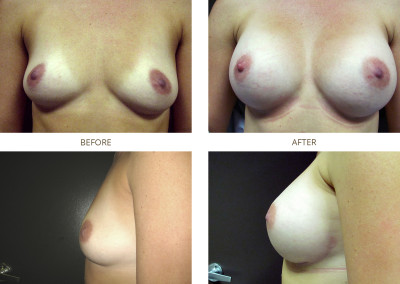 Breast-Augmentation8