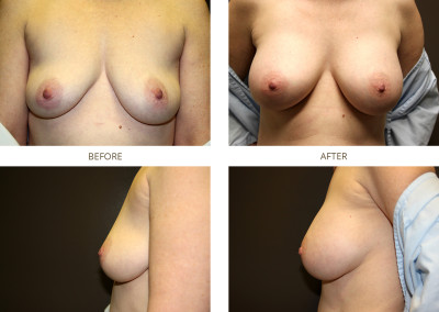 Breast-Augmentation9