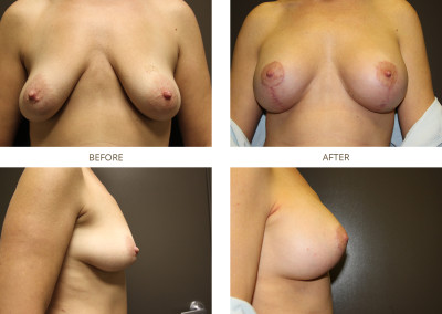 Breast-Lift1