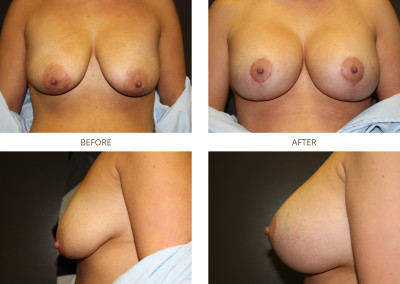 Breast-Lift10