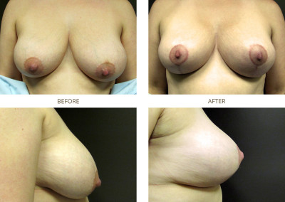Breast-Lift11