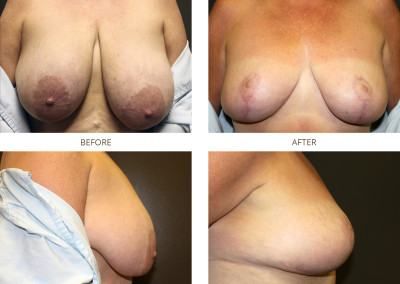 Breast-Lift12