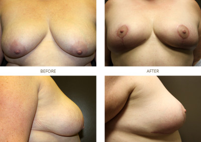 Breast-Lift13