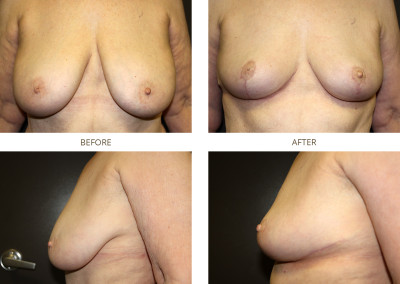Breast-Lift14