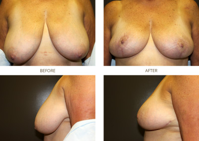 Breast-Lift15