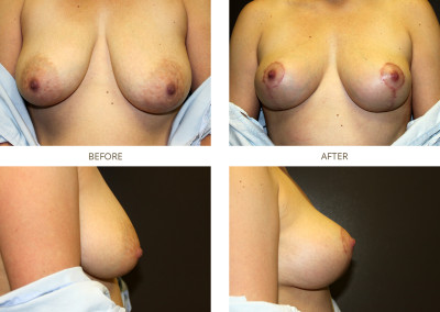 Breast-Lift16