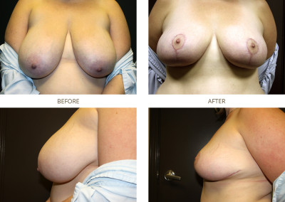 Breast-Lift18