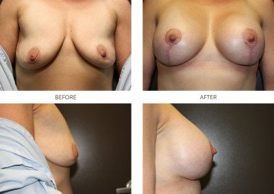Breast-Lift19