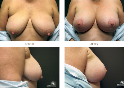 Breast-Lift2