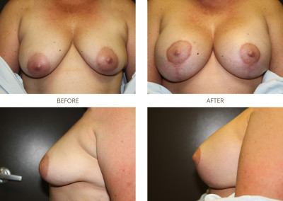 Breast-Lift3