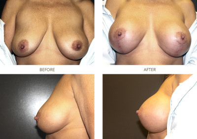 Breast-Lift6