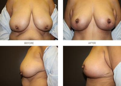 Breast-Lift7