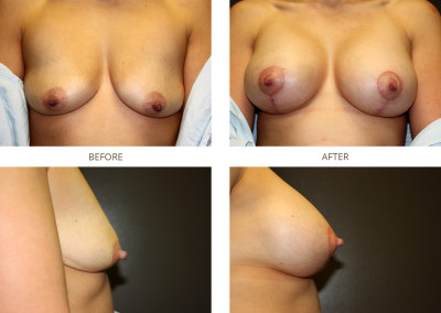 Breast-Lift8