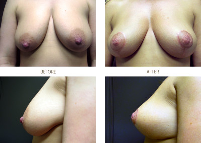 Breast-Lift9
