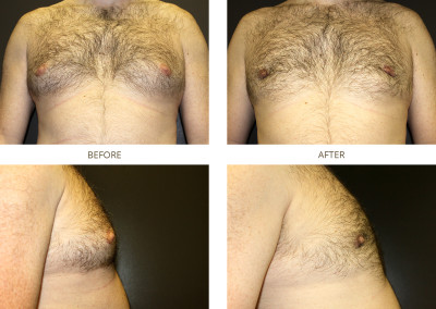 Male-Breast-Reduction2