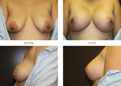 Breast-Lift20
