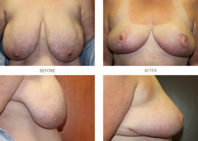 Breast-Reduction6