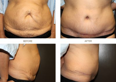 abdominoplasty-17-1