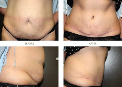 abdominoplasty-17-10