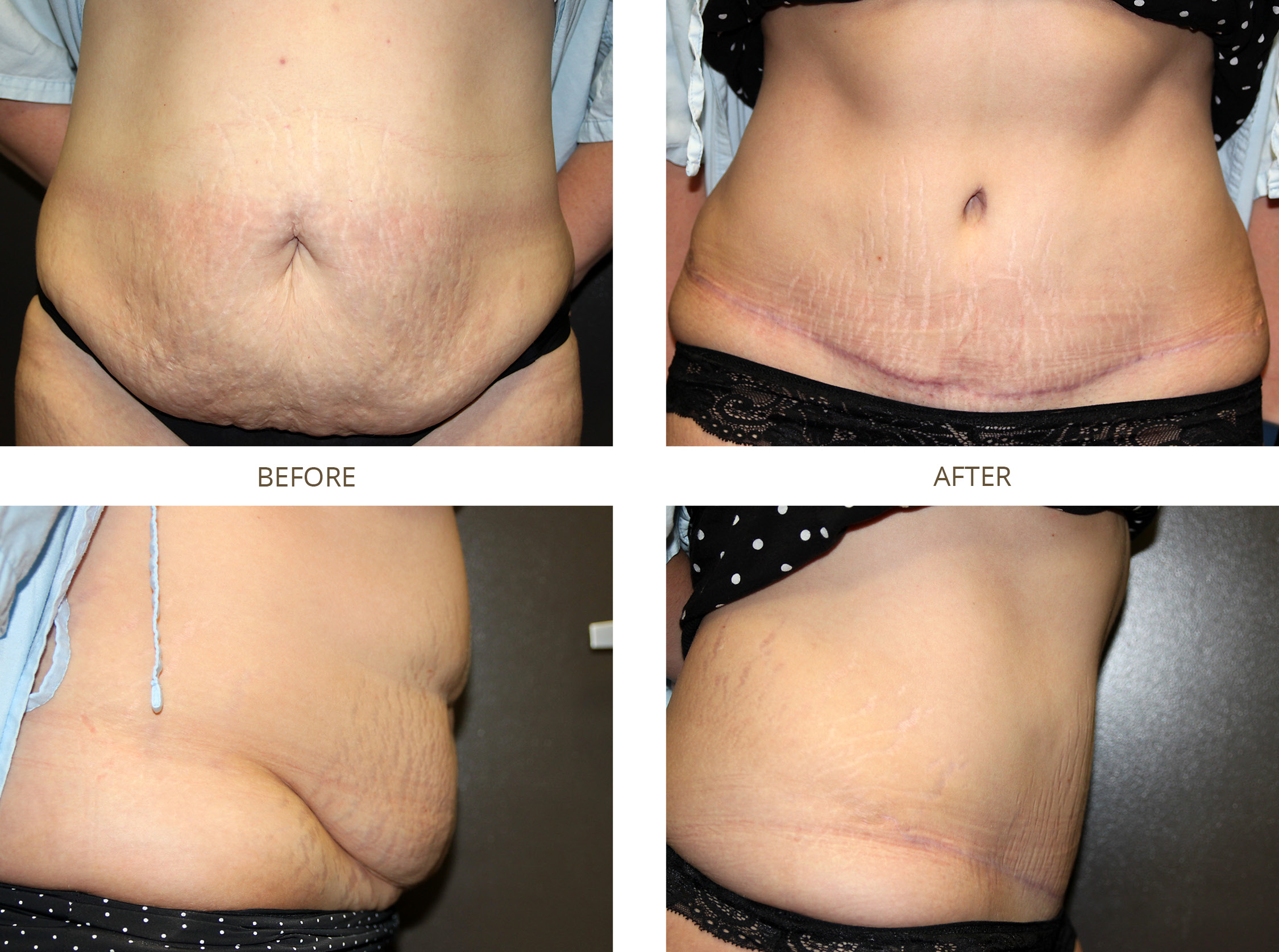 What is a Mini Tummy Tuck? Doctor Answers