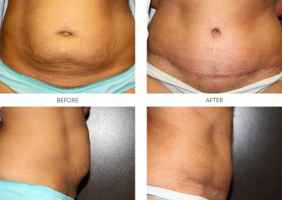 abdominoplasty-17-2