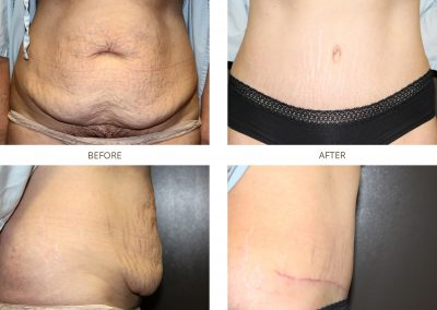 abdominoplasty-17-3