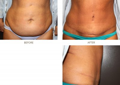 abdominoplasty-17-4