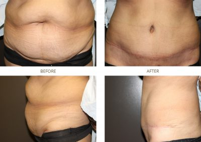abdominoplasty-17-5