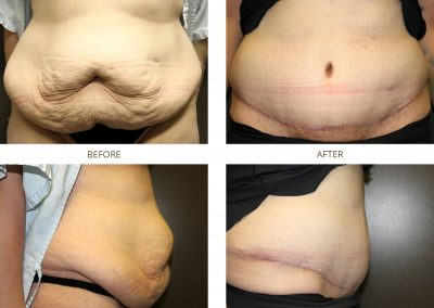 abdominoplasty-17-6
