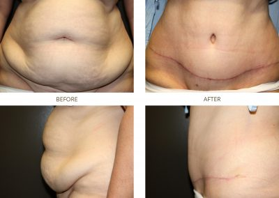 abdominoplasty-17-7