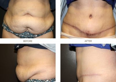 abdominoplasty-17-9