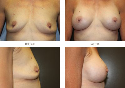 breast-augmentation-17-1