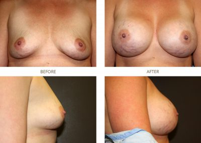 breast-augmentation-17-10