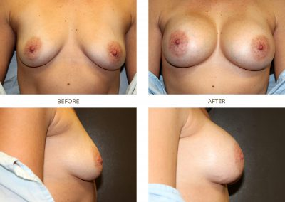 breast-augmentation-17-11