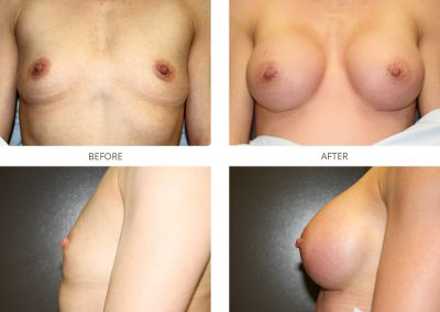 breast-augmentation-17-12